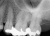 Fig 5. Preoperative No. 14 maxillary left first molar.
