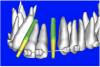 Figure 9b  Virtual implants were placed to determine the appropriate shape and type for the available space; in this case a tapered design allowed for adequate mesial-distal distance between adjacent roots.