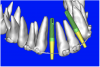 Figure 9c  Virtual implants were placed to determine the appropriate shape and type for the available space; in this case a tapered design allowed for adequate mesial-distal distance between adjacent roots.