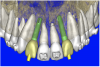 Figure 10a  By using the virtual teeth feature, (A) final implant and abutment positioning was checked, (B) the abutment projection evaluated for a cementable prosthesis, and (C) the appearance of the desired virtual restorations evaluated for emergence and esthetics.