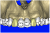 Figure 10c  By using the virtual teeth feature, (A) final implant and abutment positioning was checked, (B) the abutment projection evaluated for a cementable prosthesis, and (C) the appearance of the desired virtual restorations evaluated for emergence and esthetics.