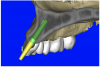 Figure 12a  (A) By sectioning the 3D model, virtual implant placement was assessed for the necessary 2 mm of facial and palatal bone surrounding the implant, and (B) by using segmentation techniques to remove the existing teeth, leaving the sockets, the alveolar complex was appreciated fully.