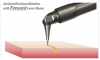 Figure 2 Incision/excision/ablation with a focused laser.