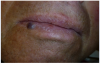 Figure 4 Preoperative view of the capillary hemangioma of the lip. The lesion is a 5-mm x 5-mm round, slightly exophytic nodule with a smooth surface and is bluish-purple in color.
