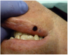 Figure 14 The immediate postoperative view. A thin layer of char was created as a precautionary measure to protect the surgical site. No sutures were placed and the surgical wound was left to heal by secondary intention.