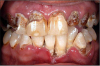 "Figure 13. Oral Condition of a Crystal METH Abuser. ""METH Mouth"" Image source: www.doctorspiller.com"