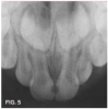 Fig 5. Mesial caries lesions in 2-year-old patient.