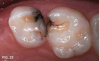 Fig 23. 8 months after single SDF applications in previously restored teeth in an 11-year old.