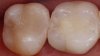 Fig 2. With knowledge and experience in composite resin restorations, longevity can be increased, postoperative sensitivity decreased, and desired esthetics achieved.