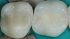 Fig 6. Bulk-fill composite resin for posterior restoration.