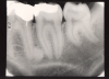 Figure 1 - Periapical Image