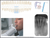 Figure 28 - Mandibular Central Lateral Incisors