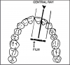 Figure 40 - Maxillary Central/Lateral Incisors