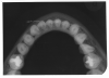 Figure 70 - Mandibular Cross-Sectional Occlusal Image