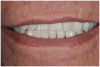 "Fig 2. Potential ""All-on-4"" patient with terminal dentition who was unhappy with his smile esthetics."
