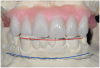 Fig 4. Diagnostic wax-up performed after model surgery simulating maxillary tooth extraction. Note that inferior repositioning of the incisal plane helped create the 15 mm to 17 mm inter-occlusal space needed for the maxillary All-on-4 provisional restoration.
