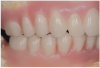 Fig 6. Completed diagnostic wax-up for maxillary and mandibular All-on-4 full-arch rehabilitation.