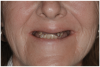 Fig 17. Pre-treatment smile of patient with terminal dentition.