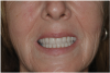 Fig 19. Patient smile shown 3 years post-treatment.