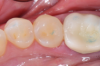 Fig 3. Finished Class II restoration using bulk-fill posterior dental composite.