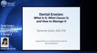 Dental Erosion: What Is It, What Causes It, and How to Manage It Webinar Thumbnail