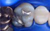 Fig 3. Occlusal view of the tooth before the restoration.