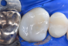 Fig 6. Finished Class II restoration using matrix system, flowable composite, and bulk-fill composite.