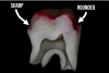 Fig 4. Extracted molar prepared for crown with cured layer of universal adhesive applied and stained pink.