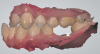 Fig 7. Intraoral scan data of buccal bite, showing upper arch, lower arch, and implant.