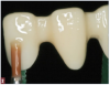 Fig 2. The earliest versions of zirconia were used as frameworks on which more esthetic, lower-strength layering ceramic was placed.