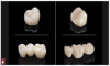 Fig 4. Monolithic zirconia restorations.