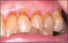 Figure 6 – Loss of periodontium with subsequent loss of tooth structure and contour