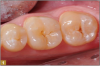 Fig 1. Subtle decay, occlusal view.