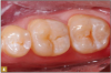 Fig 4. Caries indicator was used to ensure all decay was removed.