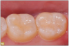 Fig 10. A patient with proximal decay on the incisors and some occlusal decay on molars had a layer of bioactive flowable composite placed over the dentin, which was then light-cured, and then the remainder of the restoration was built on the bioactive flowable.