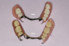 Fig 2. Differences are evident in the design of vintage complete dentures and removable partial dentures compared with current versions.