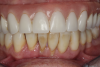 Fig 6. Periodontitis, mandibular dentition; pain and infection were evident.