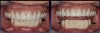 Fig 7. The treatment alternative chosen was scheduled serial extractions and immediate implant placement.