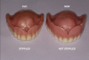 Fig 1. Differences are evident in the design of vintage complete dentures and removable partial dentures compared with current versions.