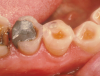 Fig 13. Wear of occlusal surface adjacent to amalgam restoration, leaving dentin exposed and susceptible to continued erosion and attrition.