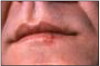 Figure 4 – Cold Sore