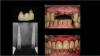 Fig 6. Ti-base abutments were seated and verified with a periapical radiograph, and a PMMA provisional placed on the same day and secured by screw retention.