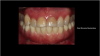 Fig 13. Final screw-retained zirconia restoration.