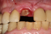 Fig 6. Image of the patient's mature smile.