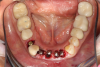 Fig 42. Occlusal view of prepared implants.