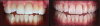 Fig 4. Left: This intraoral photograph taken with only a smartphone shows image distortion and poor color rendering. Right: This intraoral photograph was taken with a DSLR camera with an external flash and is much higher quality.