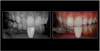 Fig 15. Smartphone dental photography can also be used in laboratory shade communication. In these images taken using MDP, the photo on the left shows value selection, while the one on the right shows chroma/hue selection.