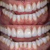 (8.) Before and after photographs with almost identical widths in the incisal one-third, but the added height to the teeth in the postoperative photograph makes them appear narrower.