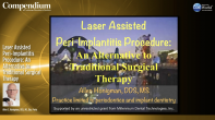 Laser Assisted Peri-Implantitis Procedure: An Alternative to Traditional Surgical Therapy Webinar Thumbnail