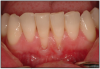 Figure 11 – Gingival Recession